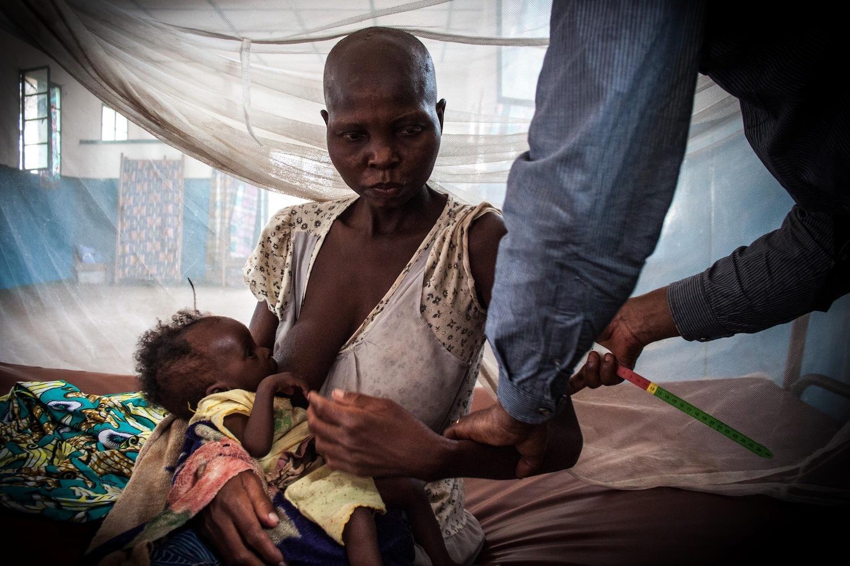 A côté des enfants mal nourris au Mali